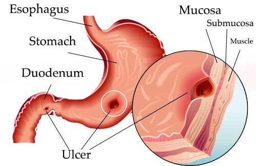 Natural Treatments to Help Relieve Gastric Ulcers