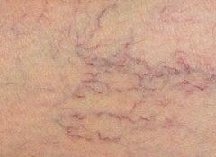 Varicos veins