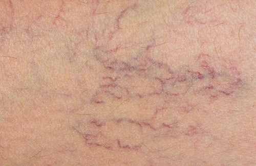 Great Natural Treatments for Varicose Veins