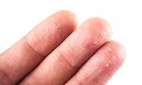 How to Eliminate Eczema Naturally
