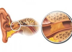 eliminate earwax naturally