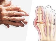 gout-arthritis
