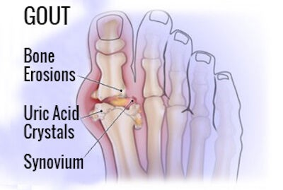 why does gouty arthritis affect the great toe gout hip fracture diet for uric acid juice