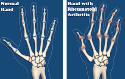 Arthritis: 6 Steps To Alleviate Its Impact