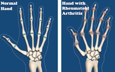 handrheumatoidarthritis