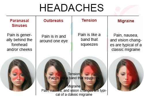 Types of headaches.