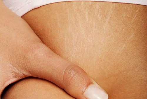 Can I Remove Stretch Marks?
