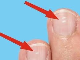 white marks on your fingernails