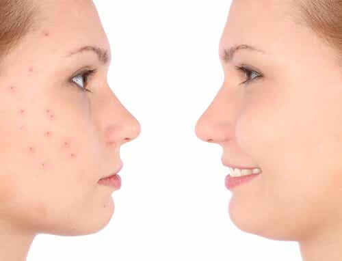 Check Out these Home Remedies for Acne