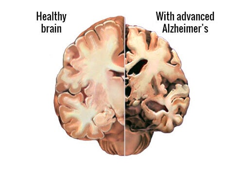 Alzheimer's: Detecting the First Symptoms in Time