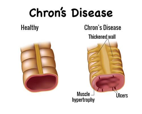 crohn's disease: symptoms and treatment - step to health, Skeleton