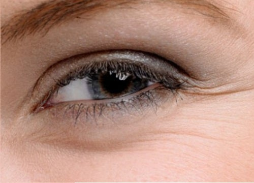 Remedies for Bags Under Eyes and Crow's Feet