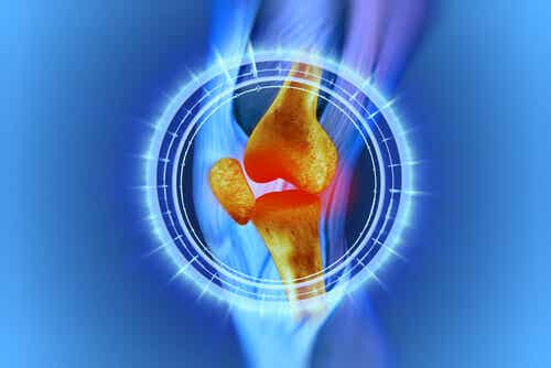 Some Excellent Natural Remedies for Knee Pain