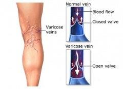 Varicose-veins1 copy