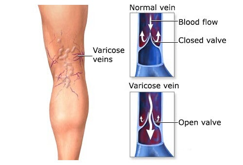 Medicinal Plants for Treating Varicose Veins