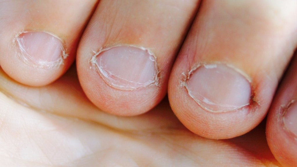 10 Tips To Stop Biting Your Nails Step To Health