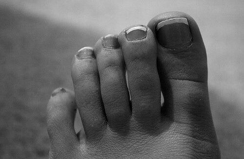 lakkerte tånegler