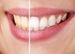 how-to-whiten-our-teeth-naturally-500x325