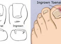 ingrown_toenails copy