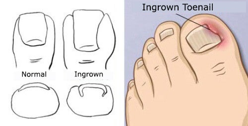 Treatments for Ingrowing Toenails