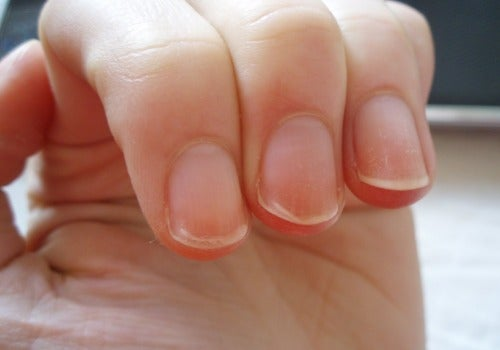 Know Your Health Through Your Nails