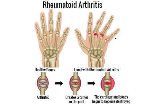 What Are the Triggers of Rheumatoid Arthritis?