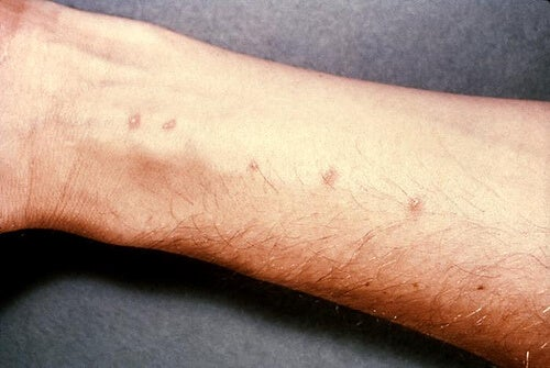 skin-allergies-2
