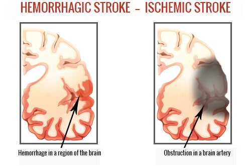 Different kinds of strokes