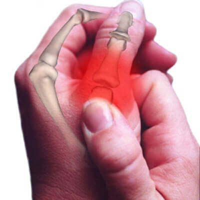 thumb-arthritis