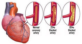 Image of arteries healthy artery compared with blocked artery