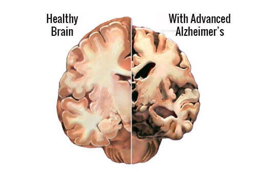 Side by side brain with advanced alzheimer's and healthy brain detect alzheimer's