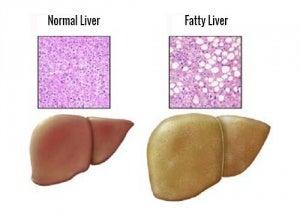 How to treat fatty liver naturally