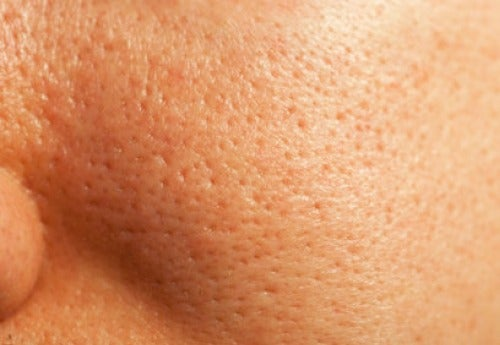 Natural Treatments for Enlarged Pores