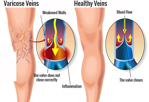 Exercises for Varicose Veins
