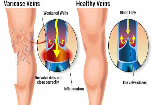 Helpful Exercises for Varicose Veins