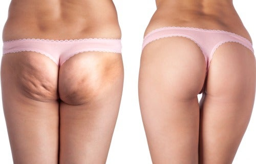 The Best Natural Ways to Eliminate Cellulite