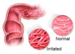 Irritablebowel