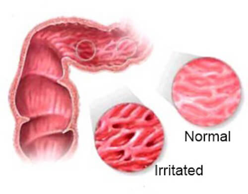 Infusions to Alleviate the Symptoms of Irritable Bowel Syndrome