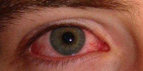 Causes and Simple Remedies for Red Eyes