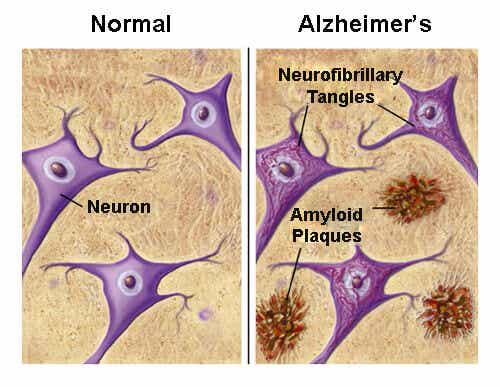 Foods that May Protect Against Alzheimer's