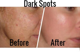 Image with before and after dark spot treatments with apple cider vinegar