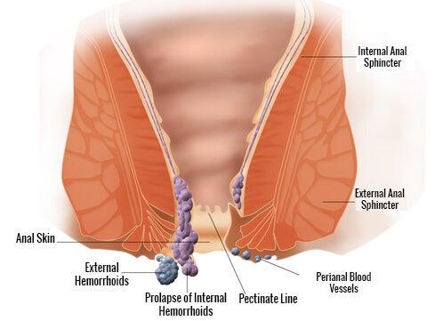 hemorrhoides