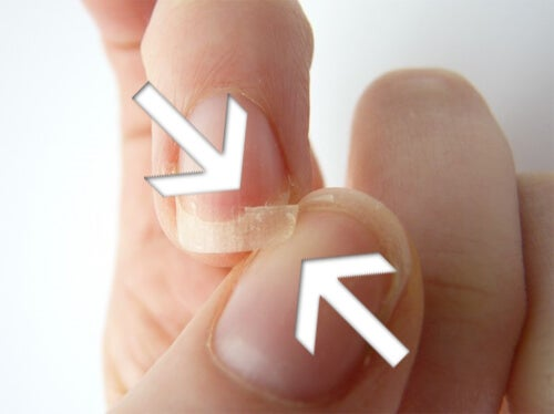 Fragile Nails: Causes and Remedies