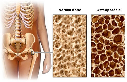 A Diet to Prevent Osteoporosis