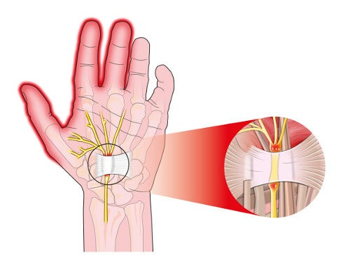 5 Ways to Relieve the Pain from Carpal Tunnel Syndrome