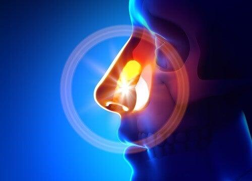 11 Remedies to Naturally Treat Sinusitis