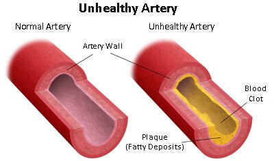 A diagram of unhealthy arteries.