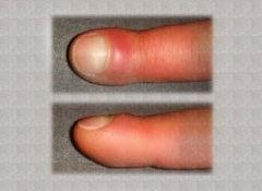 swollen-fingers
