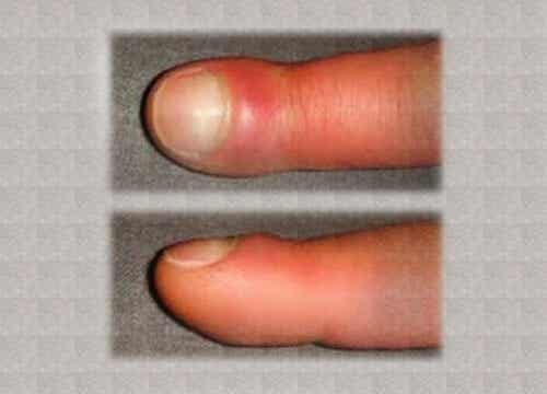 What are Some Causes for Swollen Fingers?