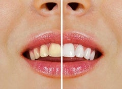 tricks whiten teeth